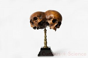 Conjoined Skull Model On Stand