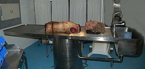 Torso and Severed Head in the Morgue
