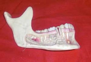 Model Jaw with Teeth