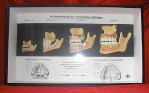Wax Model Teeth in Glazed Case