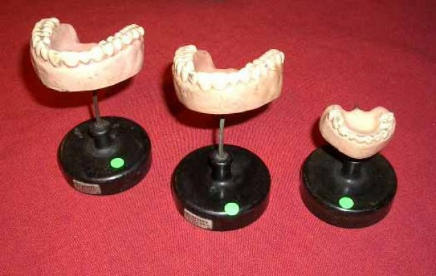 Group of tooth models