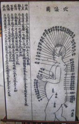 Acupuncture Chart c1900